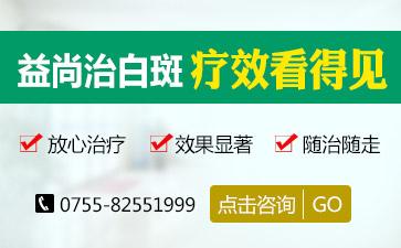深圳有专治白颠疯的医院吗?